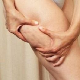 Celluliter som syns när huden trycks ihop